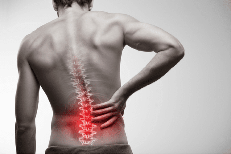 Lage rugpijn behandelen
